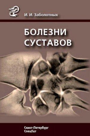 Заболотных И.И. - Болезни суставов (2013) rtf, fb2
