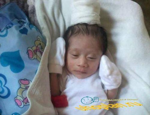 Новорожденный-единорог шокировал даже врачей (3 фото)